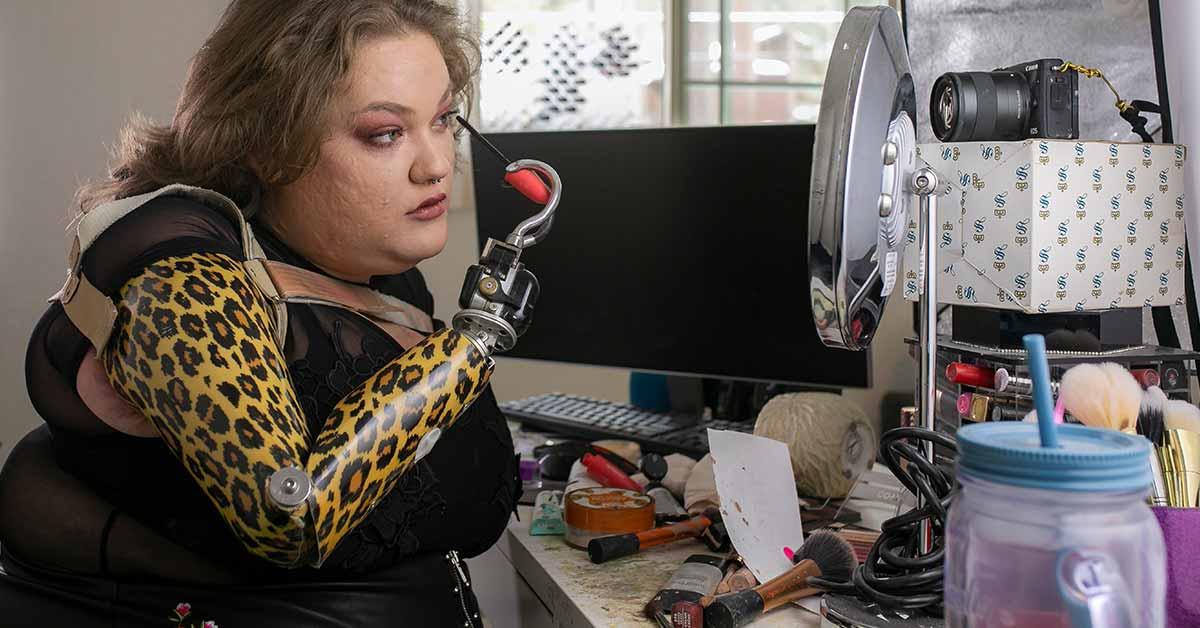 Mergina prarado savo rankas, tačiau susikūrė puikią karjerą