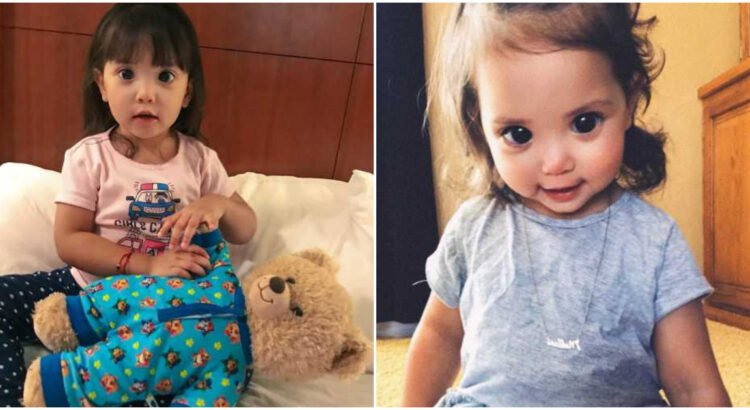 Mergaitė serga reta akių liga dėl kurios jai prognozuojama modelio ateitis
