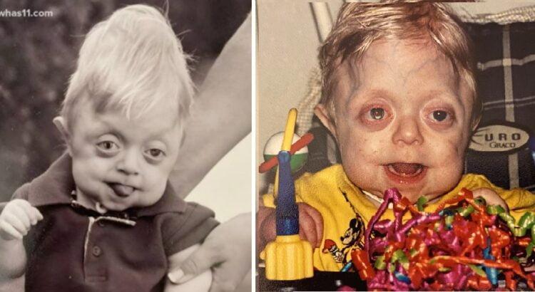 Mažylis turėjo neišgyventi net metų. Tačiau šiemet jis atšventė savo 18-tą gimtadienį ir įrodė savo tiesą jį nuvertinusiems daktarams