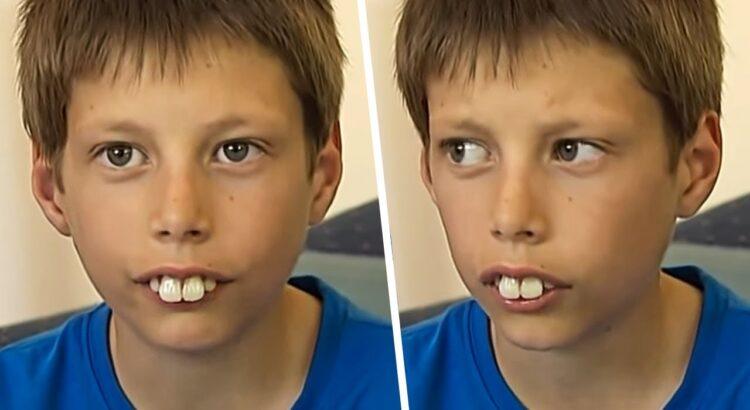 Dėl neįprastai didelių dantų šis berniukas ilgai kentė patyčias. Tačiau po 5 metų jis atrodo kaip kitas žmogus