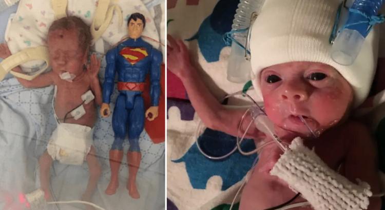 23 nėštumo savaitę gimęs berniukas buvo lėlės dydžio. Štai, kaip susiklostė ankstuko likimas