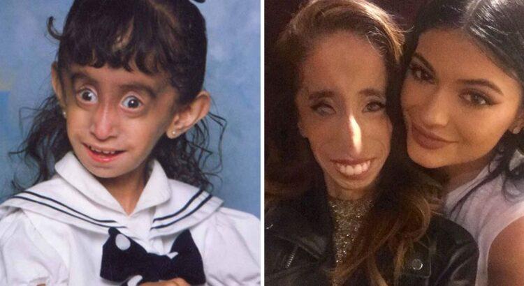"""Kai jai buvo 16-ka, internautai merginą pavadino """"baisiausia pasaulio mergina"""". Po 10 metų merginos sėkmė nušluostė nosis visiems, kas iš jos tyčiojosi"""