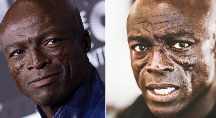 Legendinį dainininką Seal atpažįsta visas pasaulis, tačiau mažai kas žino, kaip atsirado jo išskirtinis išvaizdos bruožas - randai ant veido
