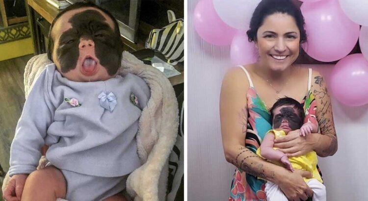 """Mergaitė gimė su reta veido liga, dėl kurios internautai ją padėjo vadinti """"betmenu"""". Tačiau jos mama pasielgė taip, kaip niekas nesitikėjo"""